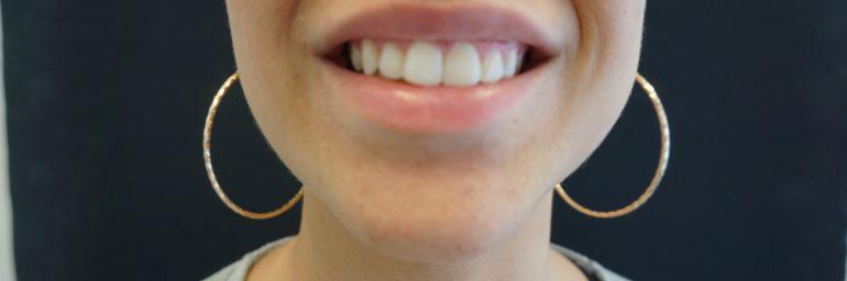 Hampaiden laservalkaisu