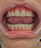 hammasvalkaisu01_e