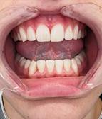 hammasvalkaisu01_j