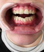 hammasvalkaisu02_e