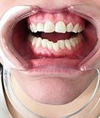 hammasvalkaisu02_j