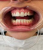 hammasvalkaisu03_e
