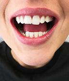 hammasvalkaisu03_j
